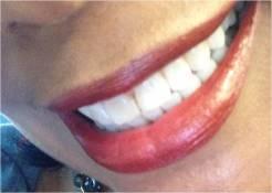 my-teeth-for-tsr