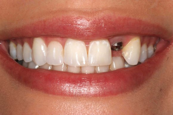 1-single-implant-tooth-missing